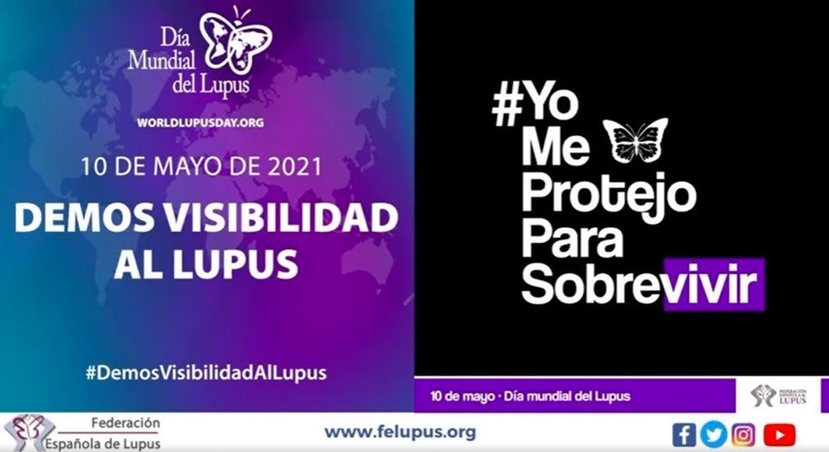 Carmen Lara se suma en el Día Mundial del Lupus al mensaje de ALCA para dar visibilidad a esta enfermedad